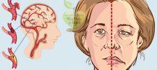 Signos de alerta ante la presencia de un ataque cerebro-vascular que no debes pasar por alto.