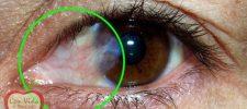 Como eliminar las carnosidades de los ojos de manera natural.
