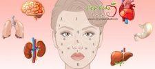 En este articulo te decimos como determinar la salud de sus riñones, hormonas e hígado al mirar su rostro.