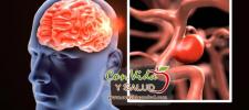 Misteriosos síntomas que indican que tuvo un accidente cerebrovascular silencioso y que otro viene pronto.